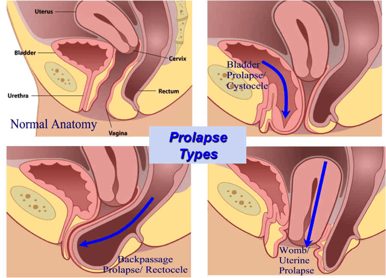 Prolapse After Childbirth What Can You Do