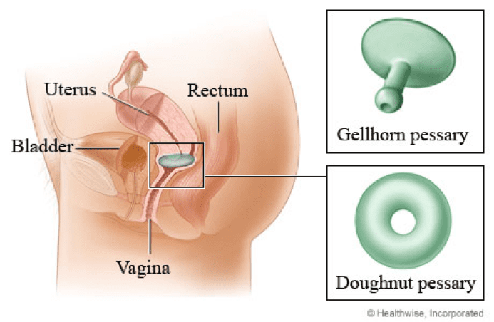 Prolapse After Childbirth What To Do 5pointpt